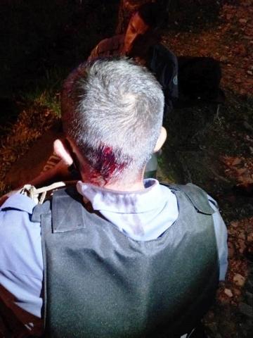 Policiales lesionados en intervencion barrio La Floresta (1).jpg