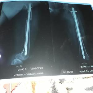 Discriminada por ser de Clorinda: No la quisieron operar de una afección grave y podría perder la pierna
